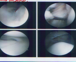 Sarah's arthroscopy